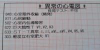 (私は入院中9)心室期外収縮 2019/09/08 05:59:00